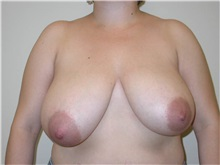 Breast Reduction Before Photo by Minas Chrysopoulo, MD; San Antonio, TX - Case 30001