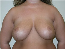 Breast Reduction After Photo by Minas Chrysopoulo, MD, FACS; San Antonio, TX - Case 30002
