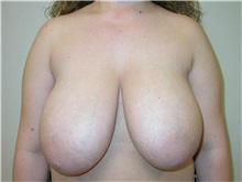 Breast Reduction Before Photo by Minas Chrysopoulo, MD; San Antonio, TX - Case 30002