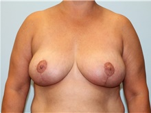 Breast Reduction After Photo by Hampton Howell, MD; Winston-Salem, NC - Case 39879