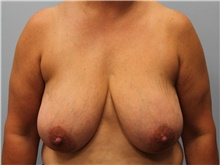 Breast Reduction Before Photo by Hampton Howell, MD; Winston-Salem, NC - Case 39879