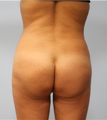 Buttock Lift with Augmentation After Photo by Hampton Howell, MD; Winston-Salem, NC - Case 40715