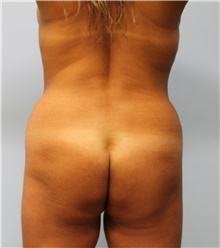 Buttock Lift with Augmentation Before Photo by Hampton Howell, MD; Winston-Salem, NC - Case 40715