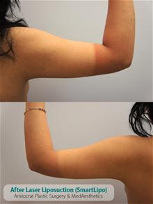 Liposuction After Photo by Kevin Tehrani, MD; Great Neck, NY - Case 26827