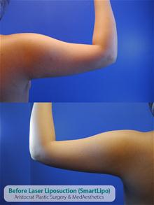 Liposuction Before Photo by Kevin Tehrani, MD; Great Neck, NY - Case 26827