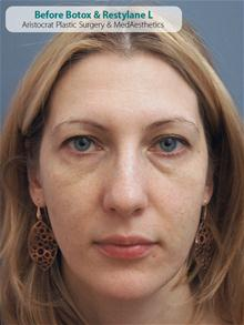 Botulinum Toxin Before Photo by Kevin Tehrani, MD; Great Neck, NY - Case 26828