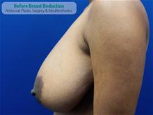 Breast Reduction Before Photo by Kevin Tehrani, MD; Great Neck, NY - Case 27227