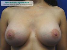 Breast Augmentation After Photo by Kevin Tehrani, MD; Great Neck, NY - Case 27228