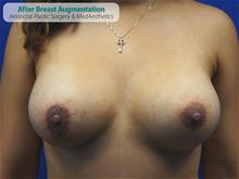 Breast Augmentation After Photo by Kevin Tehrani, MD; Great Neck, NY - Case 27229