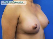 Breast Augmentation After Photo by Kevin Tehrani, MD; Great Neck, NY - Case 27232
