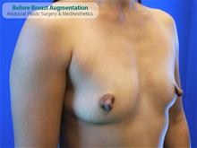 Breast Augmentation Before Photo by Kevin Tehrani, MD; Great Neck, NY - Case 27232