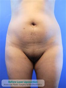 Liposuction Before Photo by Kevin Tehrani, MD; Great Neck, NY - Case 27233