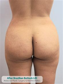 Buttock Implants After Photo by Kevin Tehrani, MD; Great Neck, NY - Case 27235