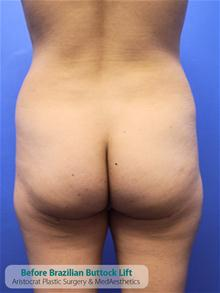 Buttock Implants Before Photo by Kevin Tehrani, MD; Great Neck, NY - Case 27235