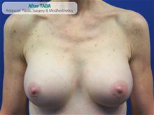 Breast Augmentation After Photo by Kevin Tehrani, MD; Great Neck, NY - Case 27237