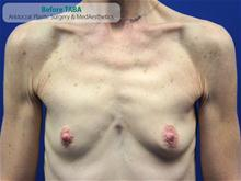 Breast Augmentation Before Photo by Kevin Tehrani, MD; Great Neck, NY - Case 27237