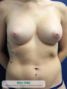 Breast Augmentation After Photo by Kevin Tehrani, MD; Great Neck, NY - Case 27238