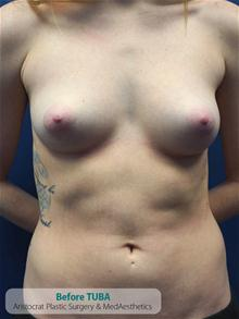 Breast Augmentation Before Photo by Kevin Tehrani, MD; Great Neck, NY - Case 27238