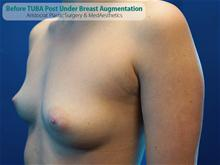 Breast Augmentation Before Photo by Kevin Tehrani, MD; Great Neck, NY - Case 27239