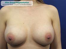 Breast Augmentation After Photo by Kevin Tehrani, MD; Great Neck, NY - Case 27384