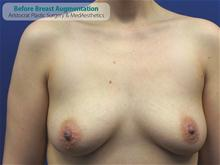 Breast Augmentation Before Photo by Kevin Tehrani, MD; Great Neck, NY - Case 27384