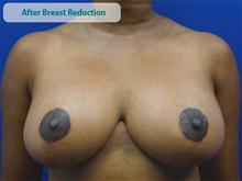 Breast Reduction After Photo by Kevin Tehrani, MD; Great Neck, NY - Case 27852