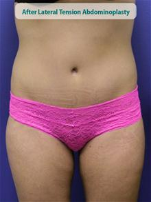 Tummy Tuck After Photo by Kevin Tehrani, MD; Great Neck, NY - Case 27853