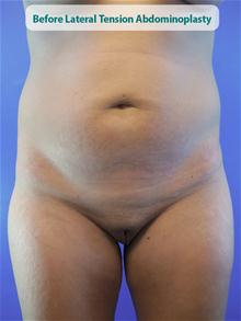 Tummy Tuck Before Photo by Kevin Tehrani, MD; Great Neck, NY - Case 27853
