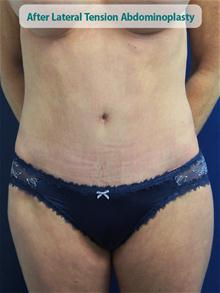 Tummy Tuck After Photo by Kevin Tehrani, MD; Great Neck, NY - Case 27854