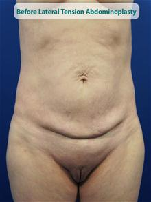Tummy Tuck Before Photo by Kevin Tehrani, MD; Great Neck, NY - Case 27854