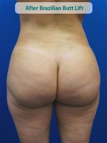 Body Contouring After Photo by Kevin Tehrani, MD; Great Neck, NY - Case 27859
