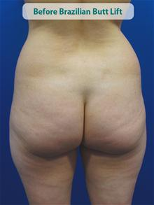 Body Contouring Before Photo by Kevin Tehrani, MD; Great Neck, NY - Case 27859