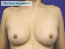 Breast Augmentation After Photo by Kevin Tehrani, MD; Great Neck, NY - Case 27860