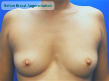 Breast Augmentation Before Photo by Kevin Tehrani, MD; Great Neck, NY - Case 27860