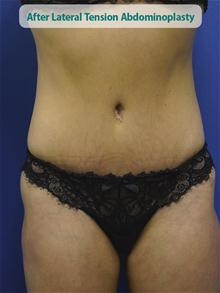 Tummy Tuck After Photo by Kevin Tehrani, MD; Great Neck, NY - Case 27885