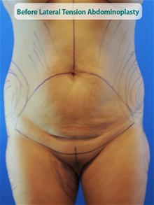 Tummy Tuck Before Photo by Kevin Tehrani, MD; Great Neck, NY - Case 27885
