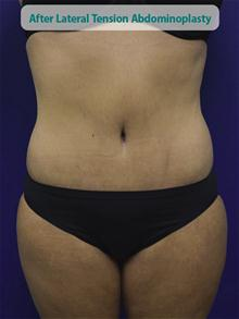 Tummy Tuck After Photo by Kevin Tehrani, MD; Great Neck, NY - Case 27886