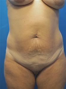 Tummy Tuck Before Photo by Kevin Tehrani, MD; Great Neck, NY - Case 27886