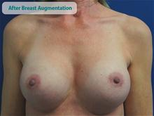 Breast Augmentation After Photo by Kevin Tehrani, MD; Great Neck, NY - Case 27887