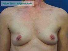 Breast Augmentation Before Photo by Kevin Tehrani, MD; Great Neck, NY - Case 27887