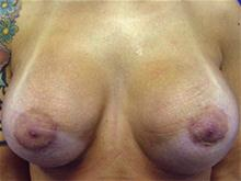 Breast Augmentation After Photo by Kevin Tehrani, MD; Great Neck, NY - Case 27894