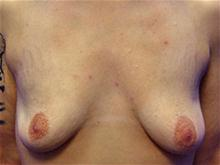 Breast Lift Before Photo by Kevin Tehrani, MD; Great Neck, NY - Case 27895