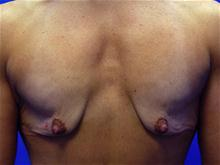Breast Lift Before Photo by Kevin Tehrani, MD; Great Neck, NY - Case 27897