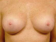 Breast Augmentation After Photo by Kevin Tehrani, MD; Great Neck, NY - Case 27898