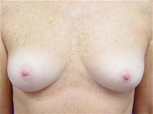 Breast Augmentation Before Photo by Kevin Tehrani, MD; Great Neck, NY - Case 27898