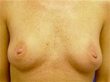 Breast Augmentation Before Photo by Kevin Tehrani, MD; Great Neck, NY - Case 27902