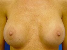 Breast Lift After Photo by Kevin Tehrani, MD; Great Neck, NY - Case 27903