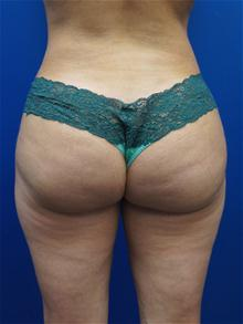 Liposuction After Photo by Kevin Tehrani, MD; Great Neck, NY - Case 27911