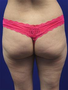 Liposuction Before Photo by Kevin Tehrani, MD; Great Neck, NY - Case 27911