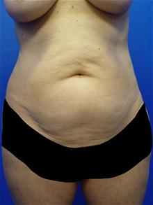 Tummy Tuck Before Photo by Kevin Tehrani, MD; Great Neck, NY - Case 27912